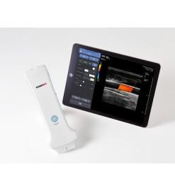 Портативный ультразвуковой сканер Sonon 300L