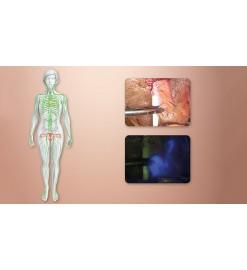 Визуализация лимфатической системы KARL STORZ в гинекологии при помощи системы NIR/ICG