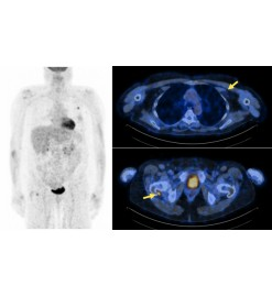 Vereos PET/CT