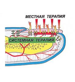 Аппарат «АЛОМ» для лечения онихомикозов