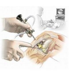 Артроскопия коленного сустава Richard Wolf