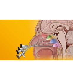Инструменты KARL STORZ  для эндоназальной хирургии основания черепа