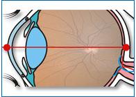Осевая длина глаза